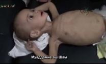 жертва блокадного голода